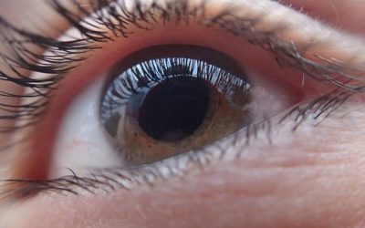 Age-Related Cataract – Know The Risks And Symptoms