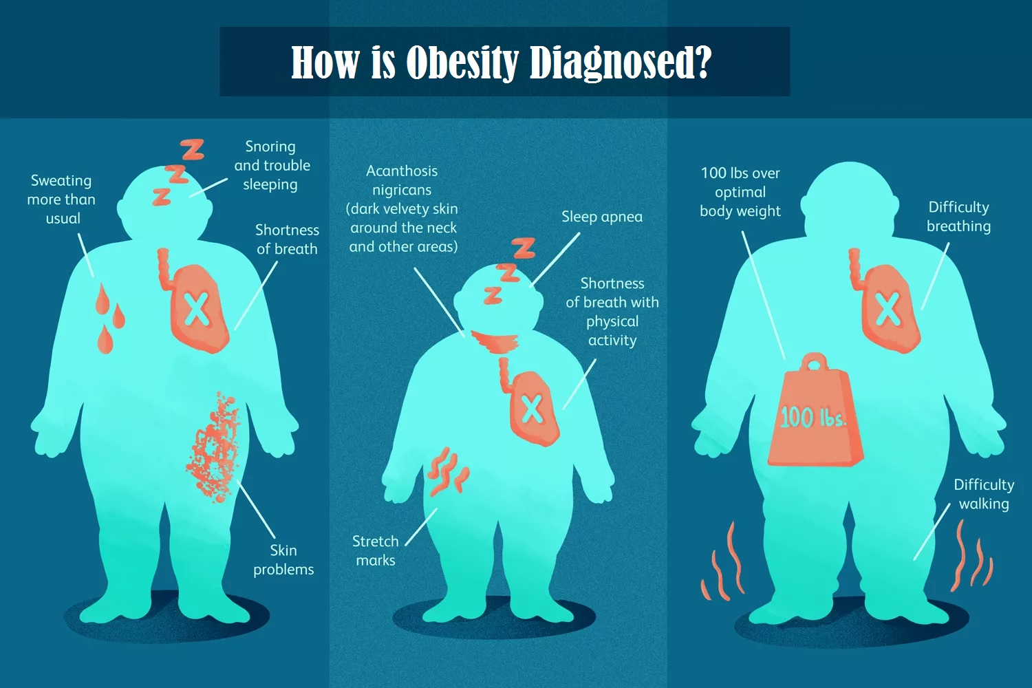 How is Obesity Diagnosed?